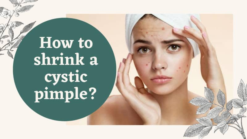How to Shrink a Cystic Pimple?