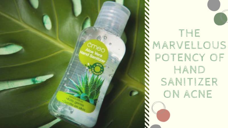 9 Marvellous Potency of Hand Sanitizer on Acne