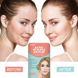 AUSLKA Acne Pimple Master Patch