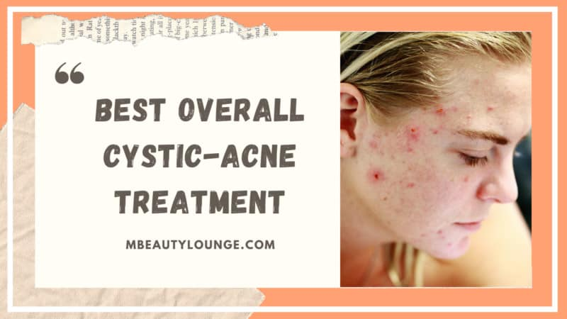 A Simple Guide to 42 Best Overall Cystic-Acne Treatment