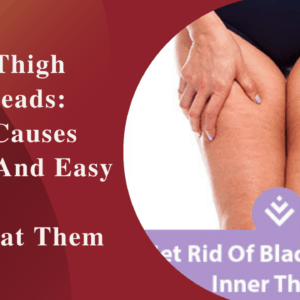 4 Inner Thigh Blackheads Products: Causes And Treatment
