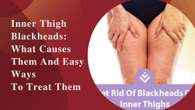 Inner Thigh Blackheads: What Causes Them And Easy Ways To Treat Them
