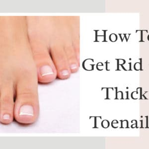 How To Get Rid Of Thick Toenails?