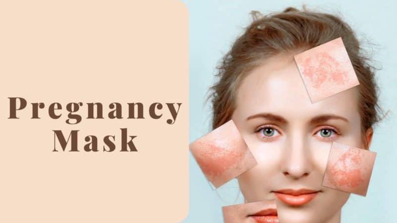 5 Pregnancy Mask – The Safest Solution To Melasma/ Chloasma