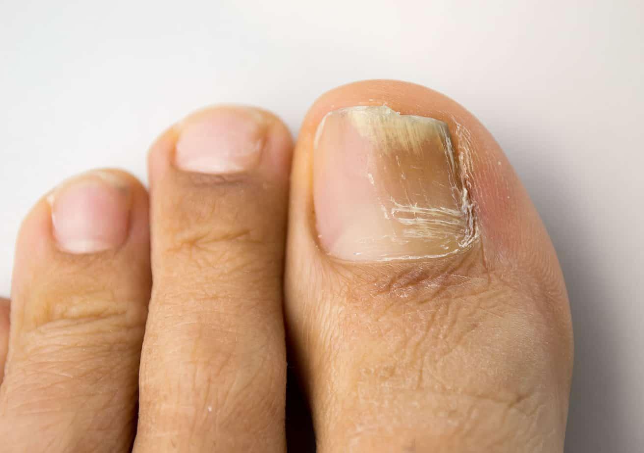 How common is the dark spot under toenail?