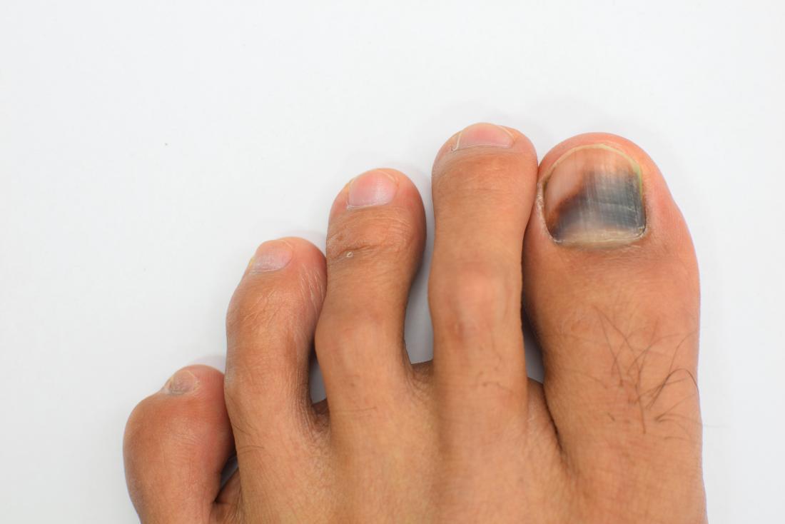 How to treat a dark spot under toenail fast
