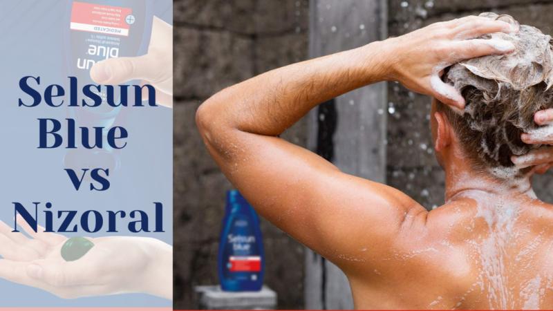 Selsun Blue vs Nizoral – Best Anti Dandruff Shampoo 2021